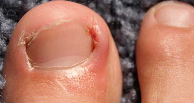 Avoid Ingrown Toenail