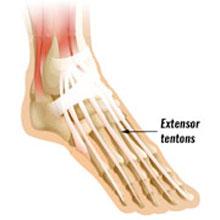 extensor tendonitis | top of foot pain | symptoms & treatment, Cephalic Vein