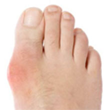 root cause of high uric acid level of uric acid in human body natural supplement for gout