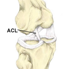 anterior cruciate ligament research paper Introduction anterior cruciate ligament (acl) injury usually leads to sence of an acl the mechanism by which acl deficient individuals attempt to stabilize their knees is unclear despite the myr- iad of research studies performed on the acl deficient population cited papers on acl deficient gait, berchuck and andri.