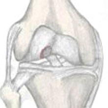 Osteochondral Knee Fracture