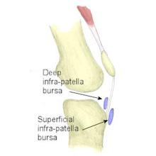 Infrapatella Bursitis | symptoms and treatment ...