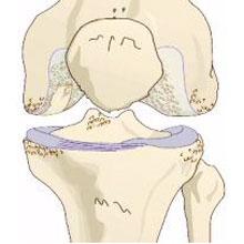 lisfranc arthrose therapie