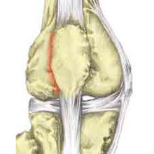 Patellofemoral Pain Syndrome