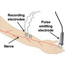 Nerve Conduction