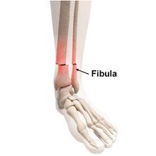 Fibula Fracture