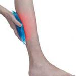 Calf Muscle Tear Bruising