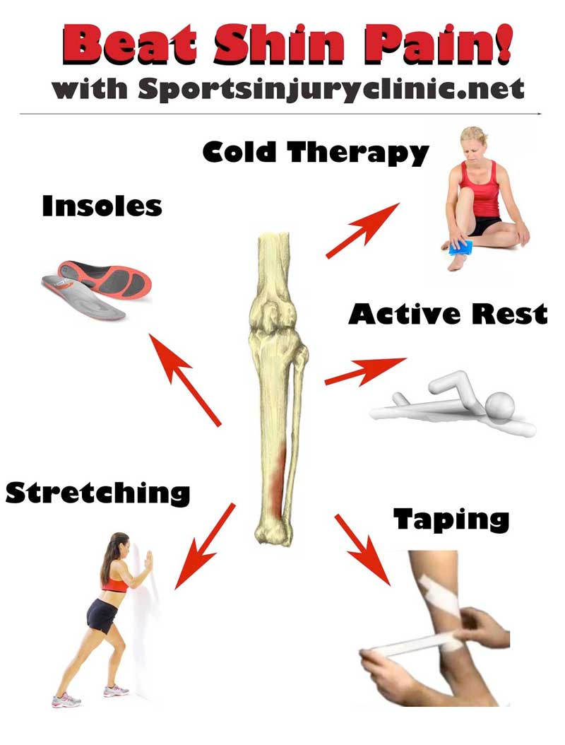 how to cure shin splints | treatment & rehabilitation for shin splints, Human Body