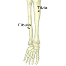Tibia Stress Fracture