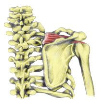 Supraspinatus Inflammation Symptoms Amp Treatment