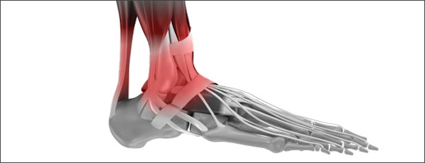 ankle pain & achilles injuries | symptoms, treatment & exercises, Skeleton