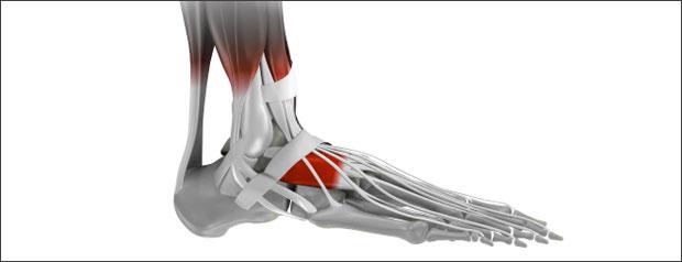 Bottom of foot heel pain