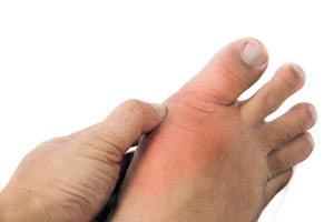reasons of increase of uric acid in human body extreme gout pain relief what causes low uric acid in blood