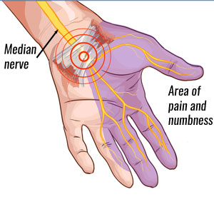 Carpal Tunnel Syndrome | Symptoms causes & treatment