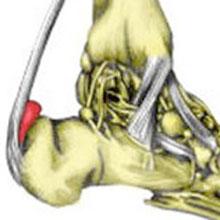 retrocalcaneal bursitis taping