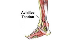 Achilles Tenosynovitis
