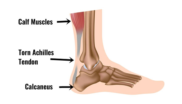 Total rupture of the achilles tendon