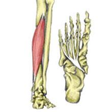 Flexor Tendonitis
