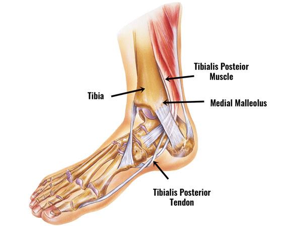 tibialis posterior syndrome posterior tibial tendon dysfunctioncauses \u0026 anatomy tibialis posterior tendinopathy