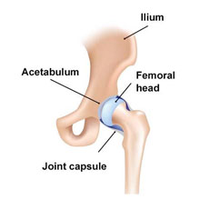 Osteoarthritis - Hip