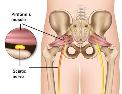 Hip Pain Location Diagram | Piriformis Syndrome Sciatic Buttock Pain Explained
