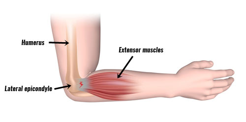 Tennis elbow - extensor muscles of the wrist