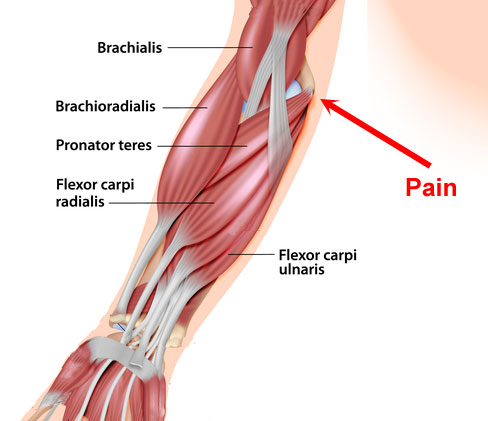 Golfer's Elbow - flexor muscles of the forearm