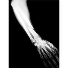 Radius Fracture (Broken Forearm)