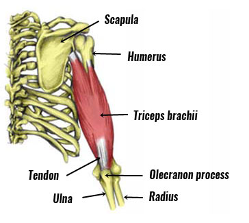 Triceps tendinopathy