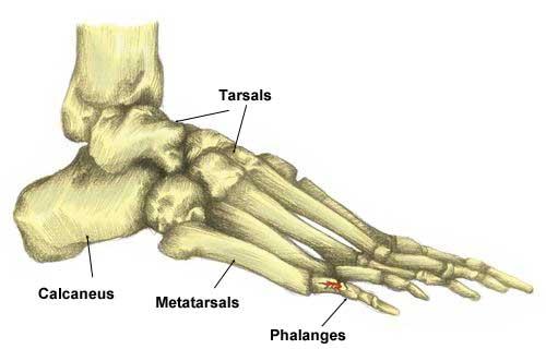Broken Toe Toe Fracture