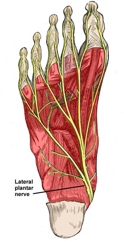 Lateral Plantar Nerve Entrapment Symptoms Treatment