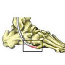 Peroneus Brevis Tendon Injury