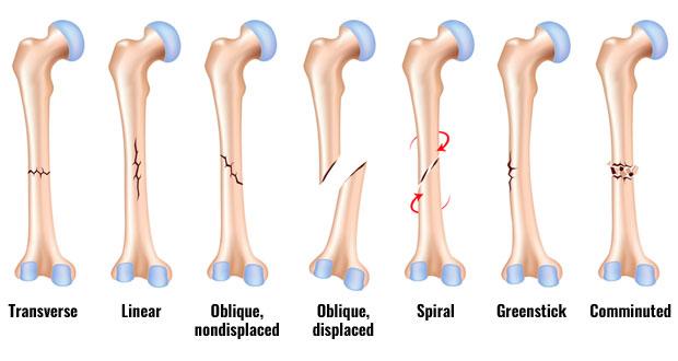 Fractures | Broken Bones Explained
