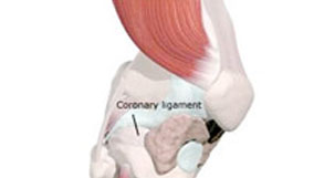 Coronary Ligament Sprain