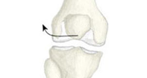 Patella Dislocation