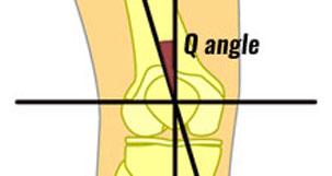 Q angle of the knee