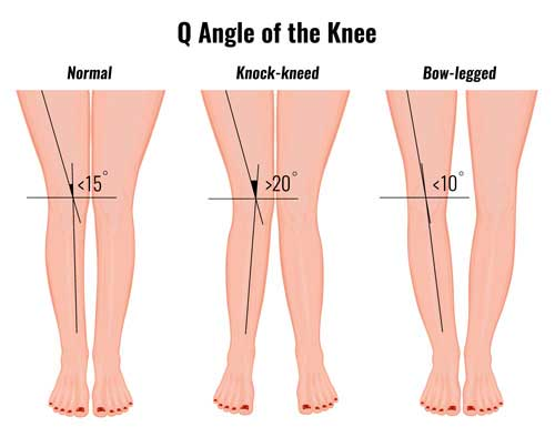 normal and abnormal q angle of the knee