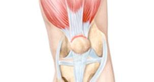 Quadriceps tendonitis inflammation