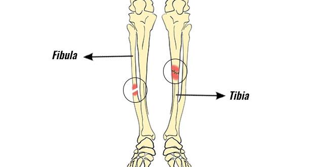 Unteres Bein | Frakturen und Spannungsfrakturen