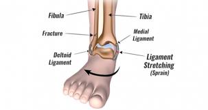 Eversion Ankle Sprain