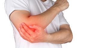 Elbow Synovitis
