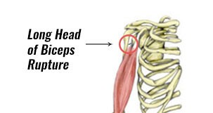 Long Head Biceps Rupture