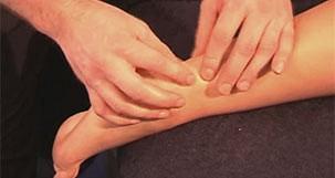 Partial Achilles Rupture Massage
