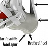 Heel pain & Heel injuries