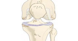 Osteoarthritis - Knee