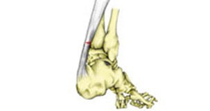 Partial Rupture Achilles
