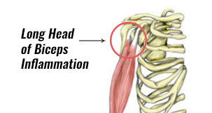 Long Head Biceps Inflammation