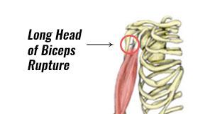 Long Head Biceps Rupture
