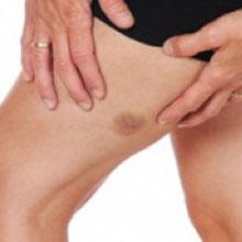 hamstring contusion symptoms treatment
