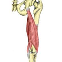 Hamstring Origin Tendonitis